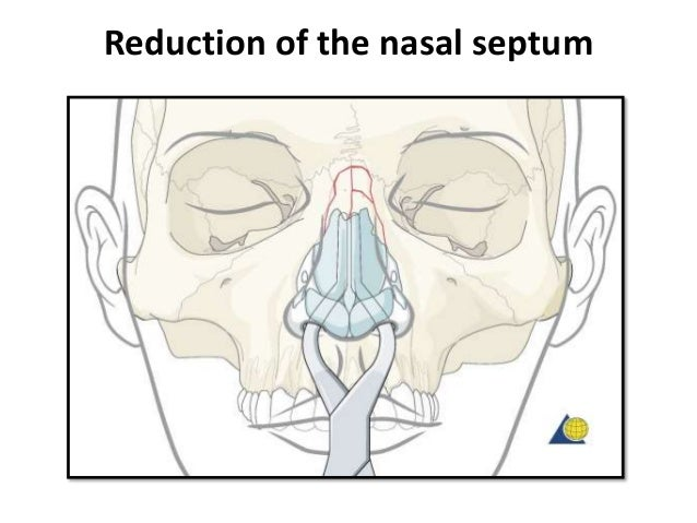Nasal bones- After reduction, adhesive strips are placed over the skin of the nasal dorsum and the nasal bones are splinte...