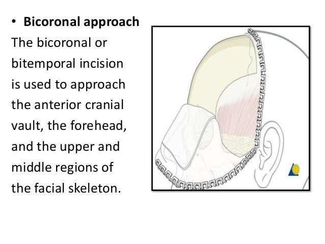 For endonasal and external techniques are accomplished through various incisions strategically placed to allow for careful...