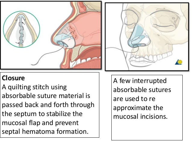 Post operative care • Postoperative positioning : Keeping the patient's head in a raised position both preoperatively and ...