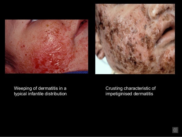 6 Dermatitis And Its Variants