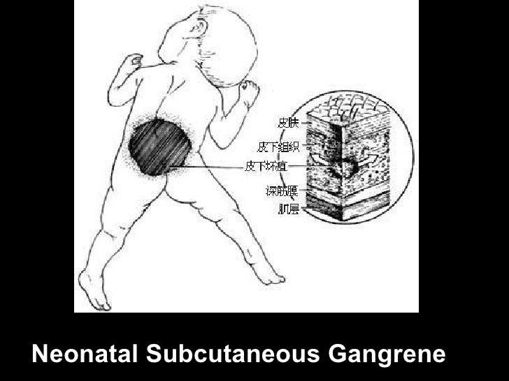 Neonatal Subcutaneous Gangrene