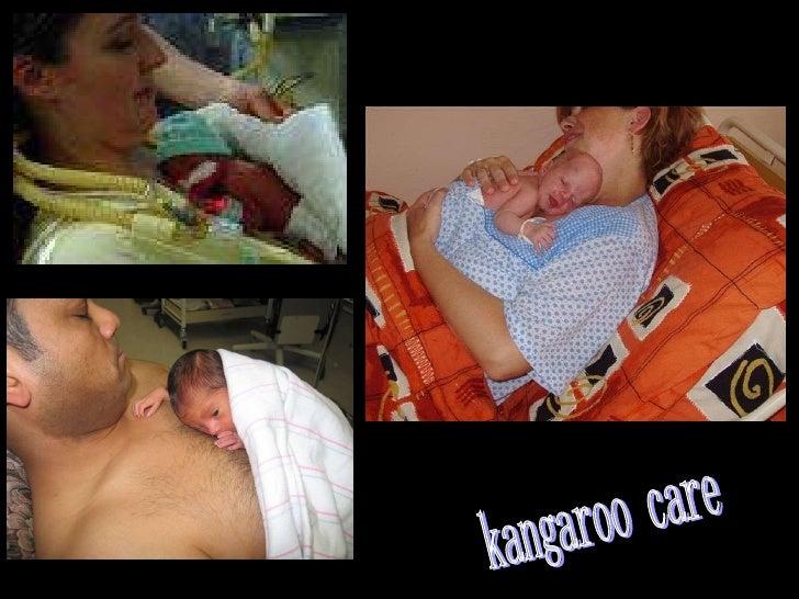 kangaroo care