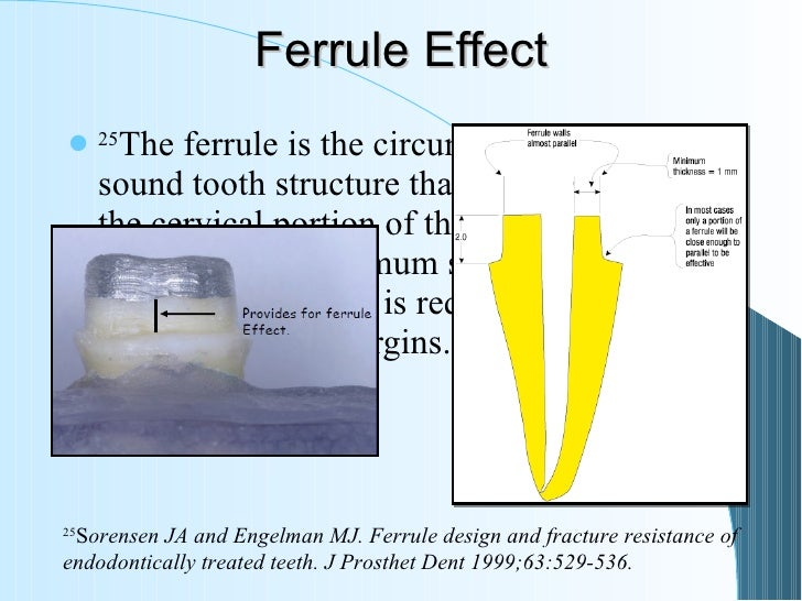 ferrule effect a literature review 2012
