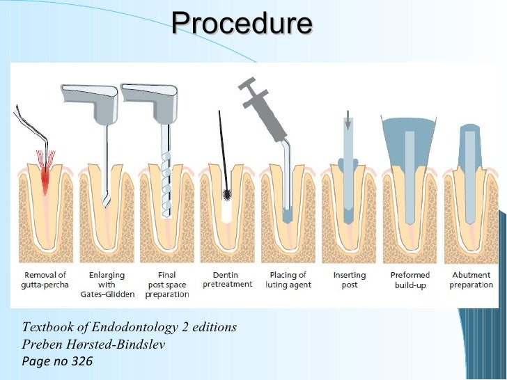 6 restoration of the endodontically treated tooth