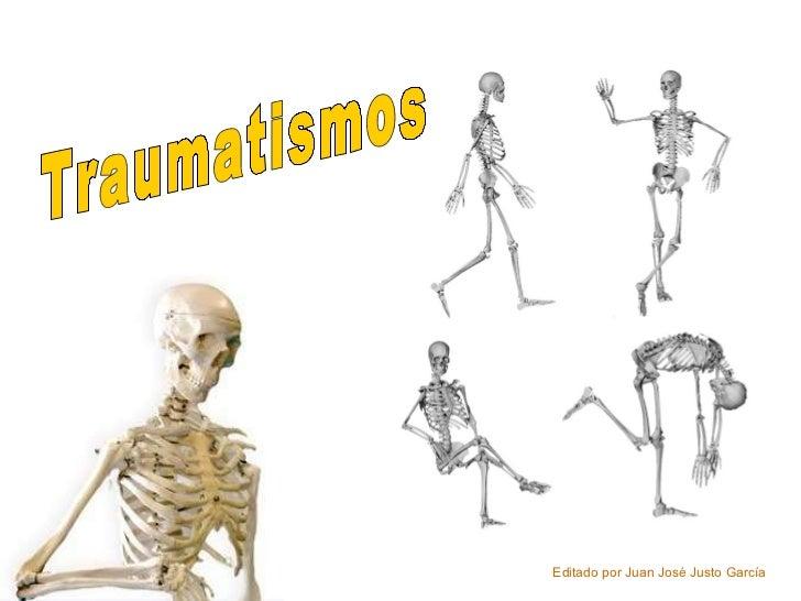 Traumatismos Editado por Juan José Justo García