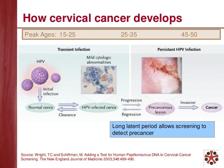 Image Result For Cancer Treatment  Years Ago