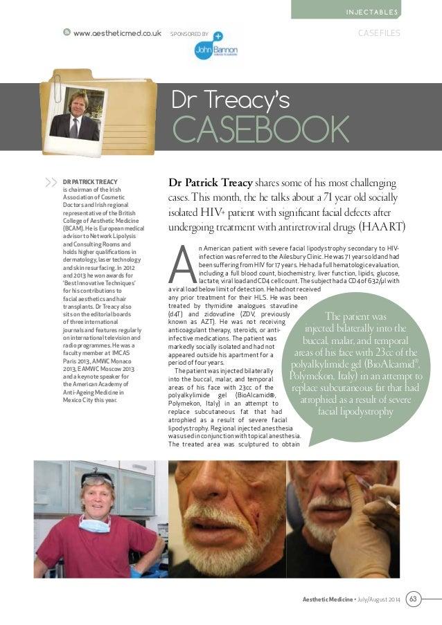 63 CASE FILES Aesthetic Medicine • July/August 2014 I N J E C TA B L E S www.aestheticmed.co.uk Dr Patrick Treacy shares s...