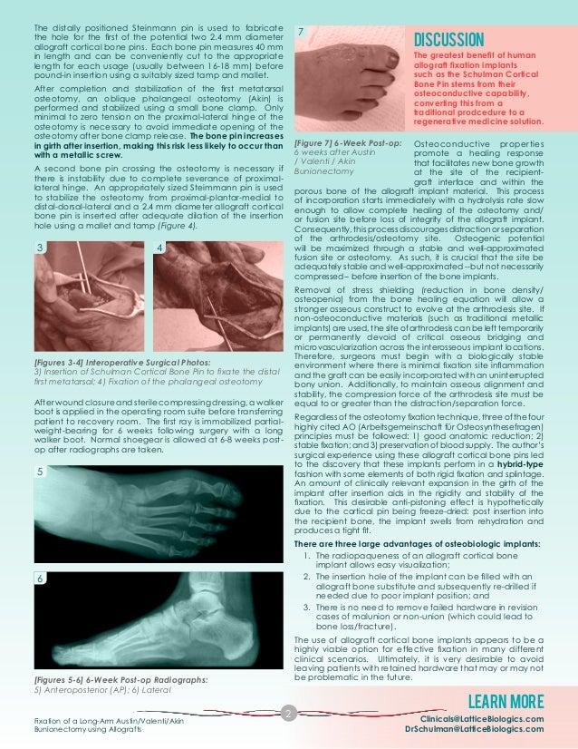 Schulman BP Case Study_AVA Bunionectomy_FINAL