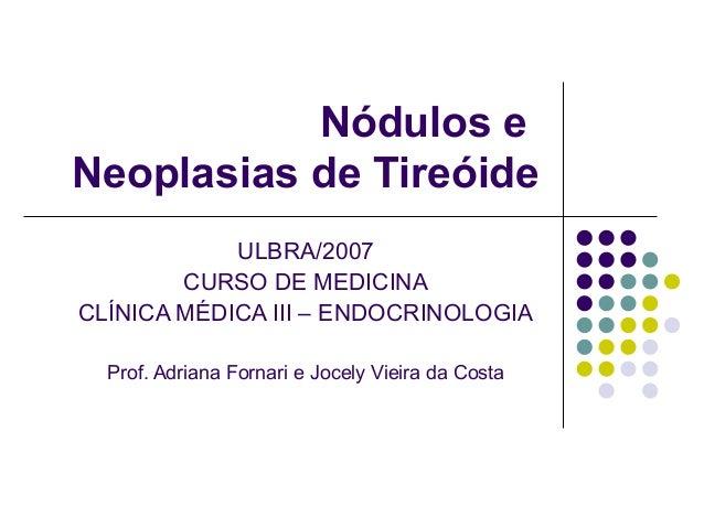 Nódulos eNeoplasias de TireóideULBRA/2007CURSO DE MEDICINACLÍNICA MÉDICA III – ENDOCRINOLOGIAProf. Adriana Fornari e Jocel...