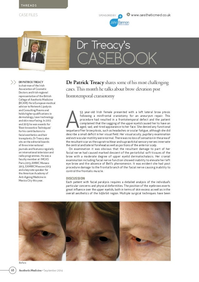 68 Aesthetic Medicine • September 2014 SPONSORED BY www.aestheticmed.co.uk T H R E A D S CASE FILES Dr Patrick Treacy shar...