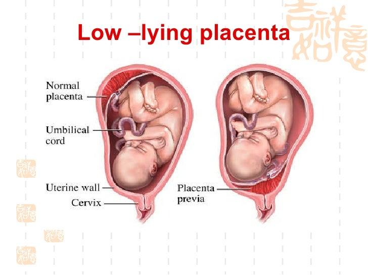 Low lying placenta orgasm