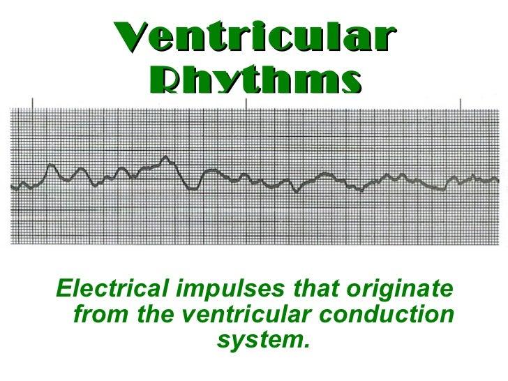 Ventricular   Rhythms <ul><li>Electrical impulses that originate from the ventricular conduction system. </li></ul>