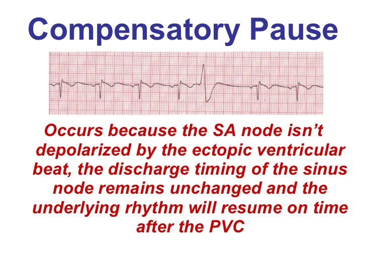ventricular rhythms bmh tele