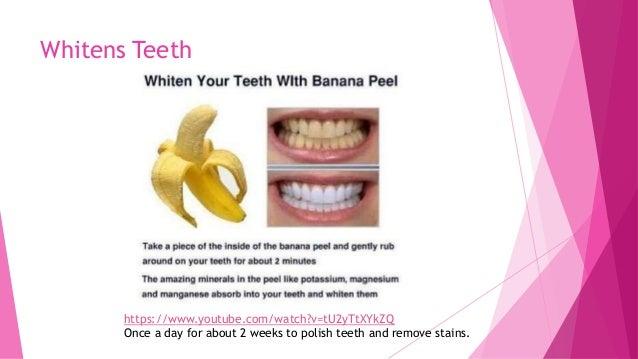6 Benefits Of Bananas