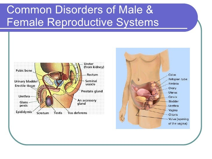 Common Disorders Of Male Female Reproductive Systems Ppt Sept 2006