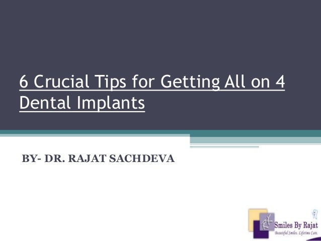6 Crucial Tips for Getting All on 4 Dental Implants BY- DR. RAJAT SACHDEVA