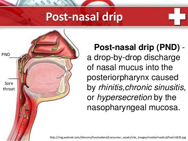 Chronic cough. Self study materials for medical students.