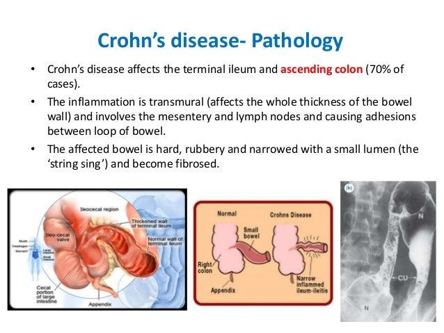 Ideal Cure Crohn S Disease