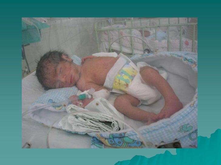 PRONÓSTICO<br />Estado del Niño<br />Convulsivo sintomático<br />Sintomático que no reacciona a la glucosa.<br />Sintomáti...