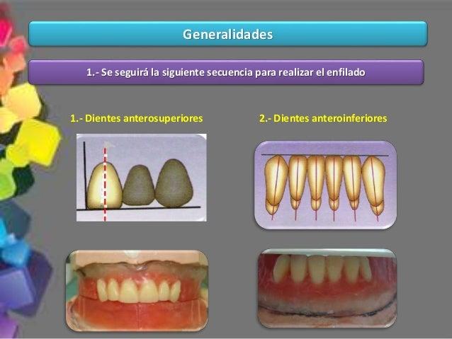 10.- La línea de referencia deberá coincidir con el brazo distal del canino y con todos los surcos centrales de los diente...
