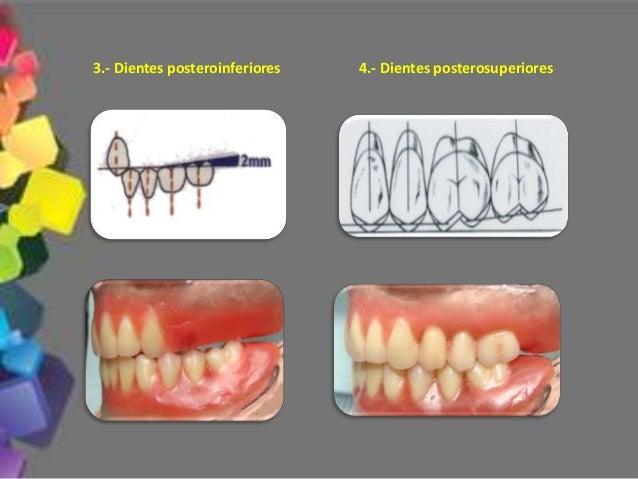 Mordida cruzada posterior 11.- El restablecimiento de la oclusión estará basado de acuerdo a la configuración ósea y relac...