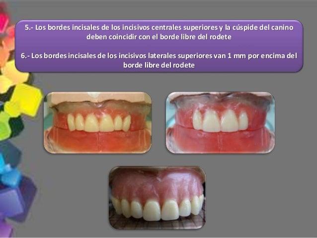 13.- Con el enfilado de los dientes artificiales se debe lograr obtener una oclusión balanceada bilateral