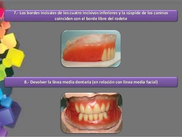 14.- Durante el enfilado de los dientes artificiales se pueden hacer caracterizaciones para simular un aspecto de más natu...