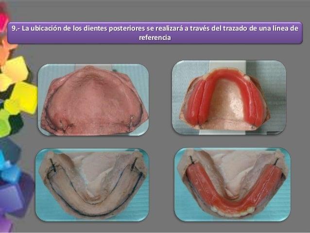Mientras más pequeña sea el área de la superficie oclusal que actúa sobre el alimento, menor será la fuerza de trituración...