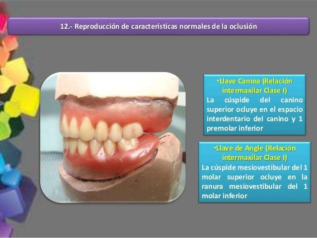 La fuerza vertical que se ejerce sobre la base de la dentadura sostenida por tejido flexible ocasiona que la base se balan...