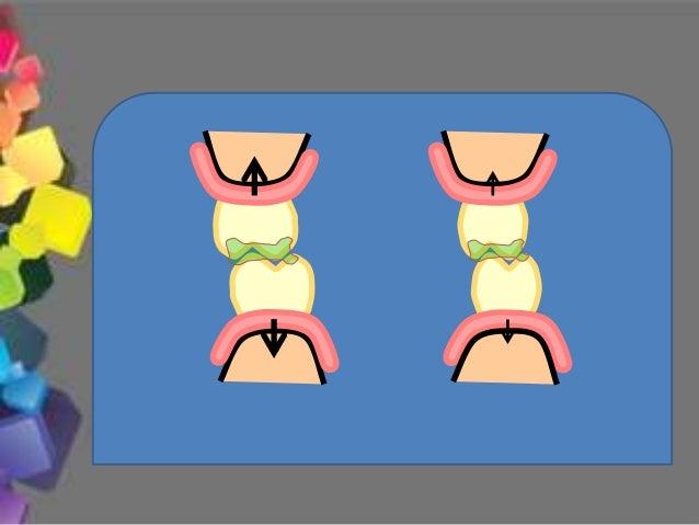 3.- En movimientos de apertura y cierre sólo hay contactos dentarios en el sector posterior sin contacto en anterior 4.- D...