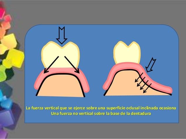 Es el tipo de oclusión empleada con mayor frecuencia en caso de confección de prótesis totales 5.- Durante el movimiento d...