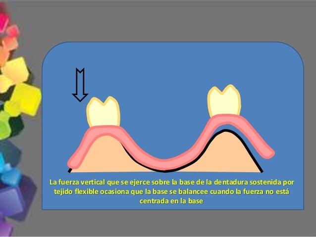 •Prueba del sector anterior 1.- Soporte labial Labio no soportado Labio soportado Deberá mantenerse el establecido en la p...