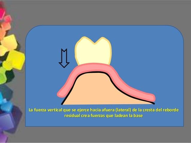 2.- Línea media dentaria Deberá coincidir con la línea media facial del paciente