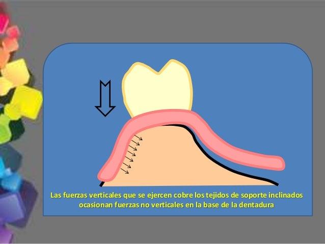 3.- Longitud de los dientes La visibilidad de los dientes artificiales estará en relación con: 3.1.- Longitud del labio su...