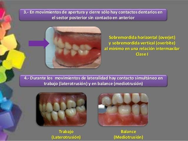 1.- Pasillo bucal Zona triangular vacía sin dientes que se forma al levantarse las comisuras bucales, también es llamada t...