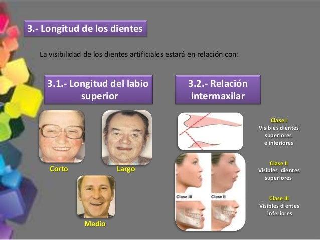 Normalmente se deslizan las cúspides palatinas superiores entre los planos inclinados de las cúspides linguales inferiores...