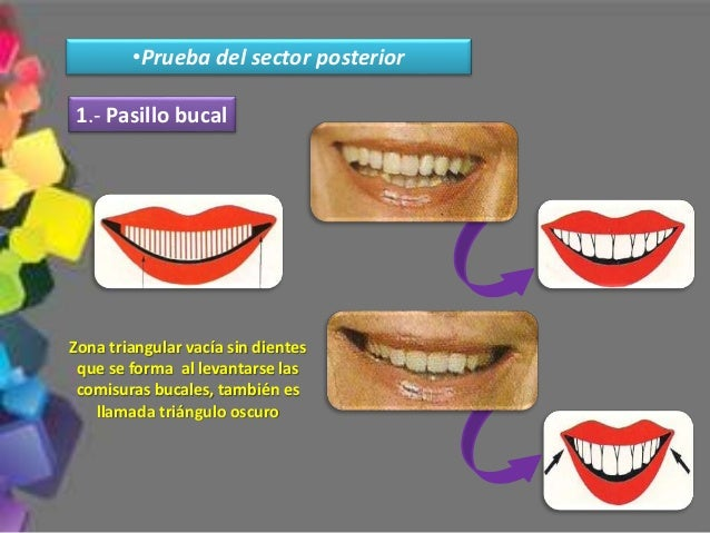 1.- ZARB, George. Prostodoncia Total de Boucher. Décima Edición. Interamericana McGraw-Hill. México Año 1994. 2.- WINKLER,...