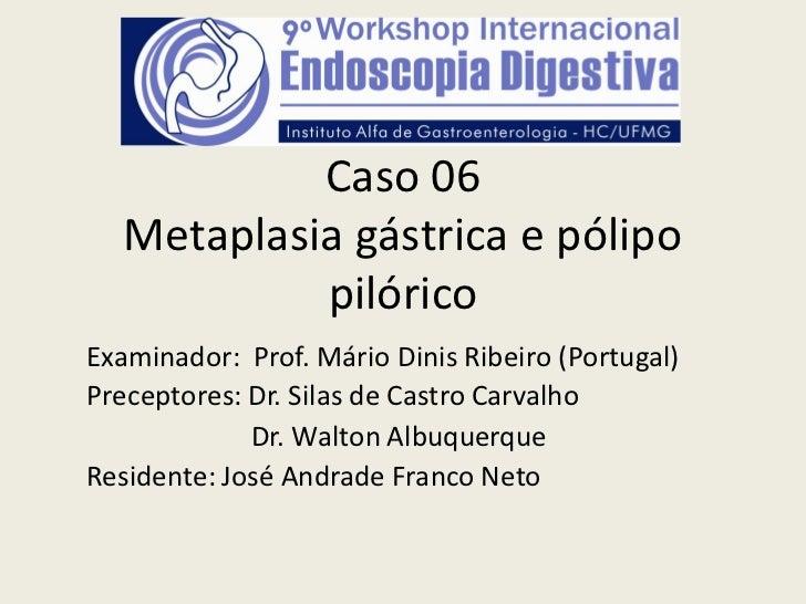 Caso 06   Metaplasia gástrica e pólipo            pilóricoExaminador: Prof. Mário Dinis Ribeiro (Portugal)Preceptores: Dr....