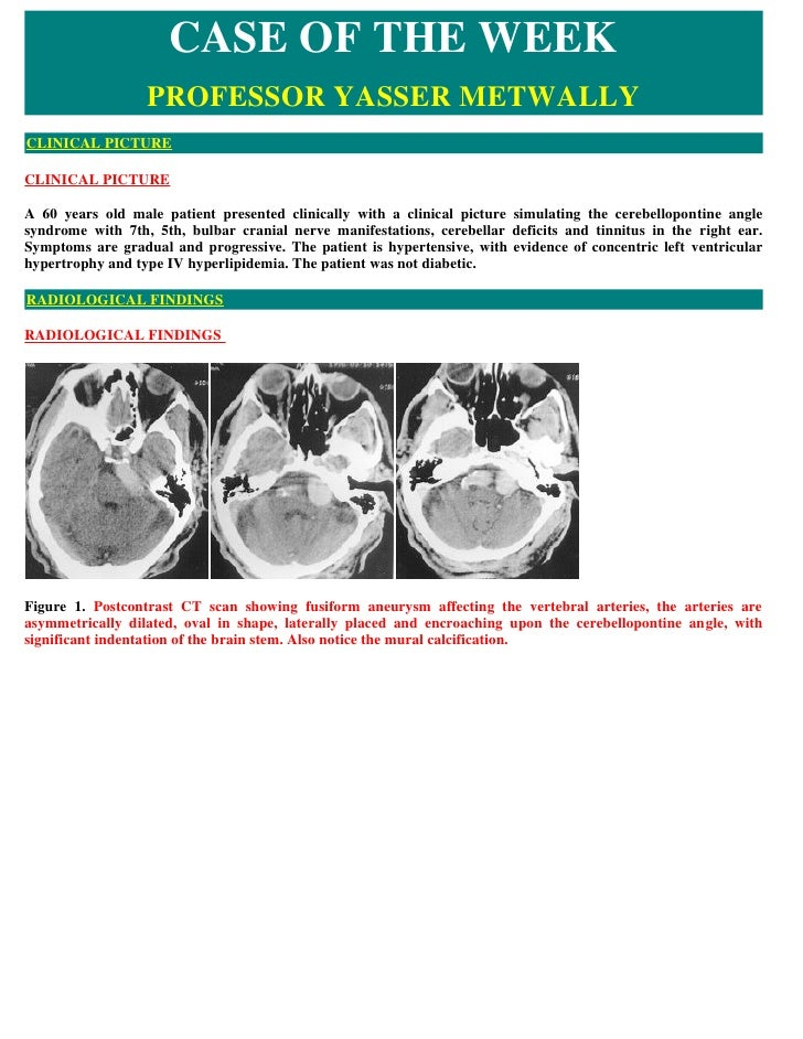 CASE OF THE WEEK                   PROFESSOR YASSER METWALLY CLINICAL PICTURE  CLINICAL PICTURE  A 60 years old male patie...