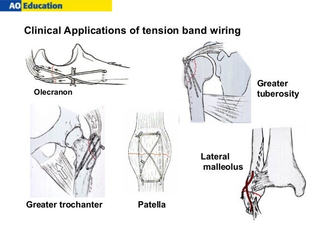 ao tension-band osteosynthesis of displaced olecranon fractures The gold standard for treating transverse olecranon fractures is tension band transverse fractures of the olecranon: a biomechanical comparison of three fixation.