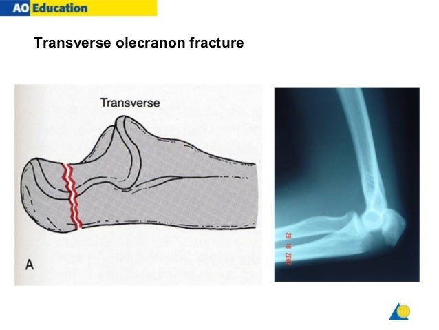Amazing Tension Band Wiring For Olecranon Fractures Analysis Of Risk Wiring Cloud Hisonuggs Outletorg