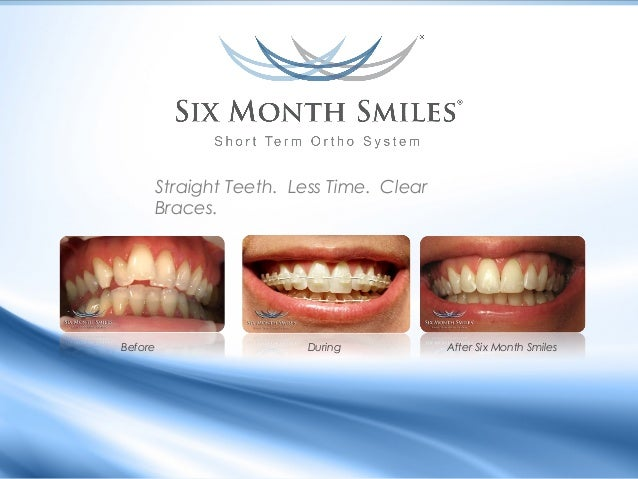 Straight Teeth. Less Time. Clear Braces.  Before  During  After Six Month Smiles