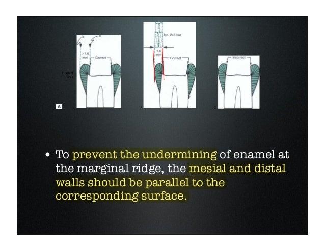 Amalgam Cavity Preparation Class I