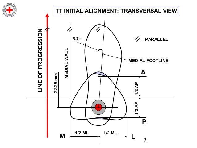 Transtibial Initial Alignment