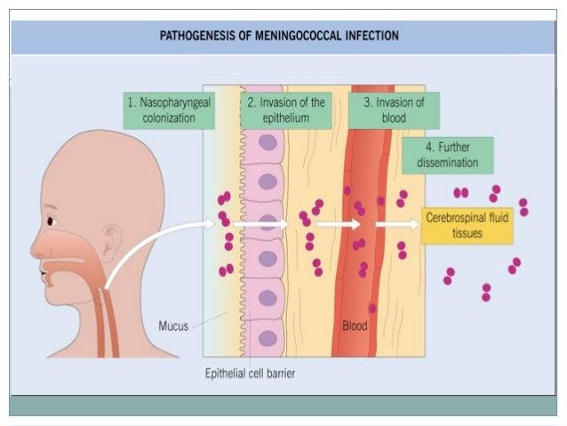 MENINGOCOCCAL INFECTION PDF