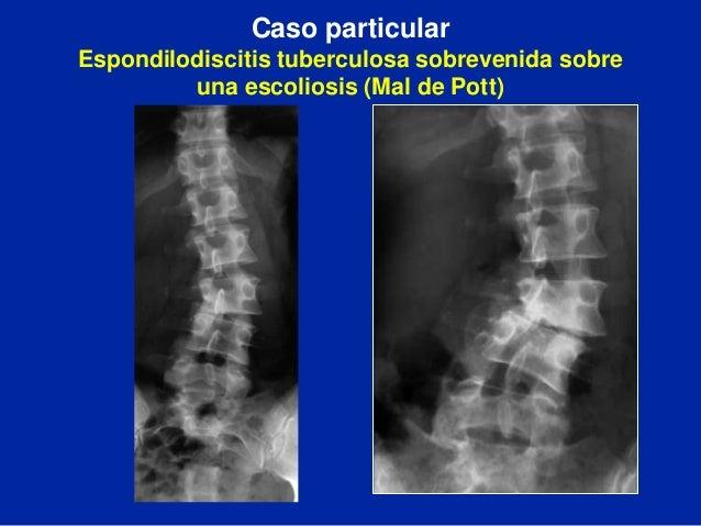 La osteocondrosis de los departamentos diferentes de la columna vertebral