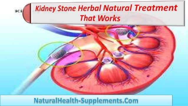 • Kidney stones are so small that they sometimes cannot be even seen in the perfect manner. • But the pain which is associ...