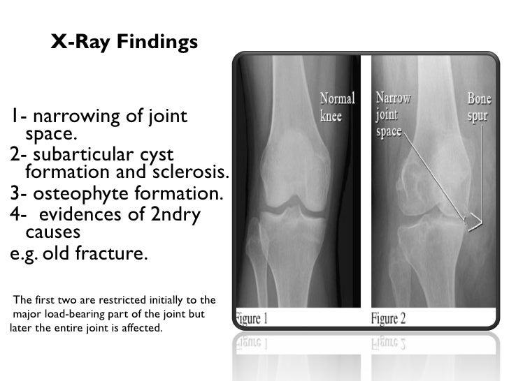 Ullix ray findings liululli1 narrowing of ullix ray findings liululli1 narrowing of ccuart Images