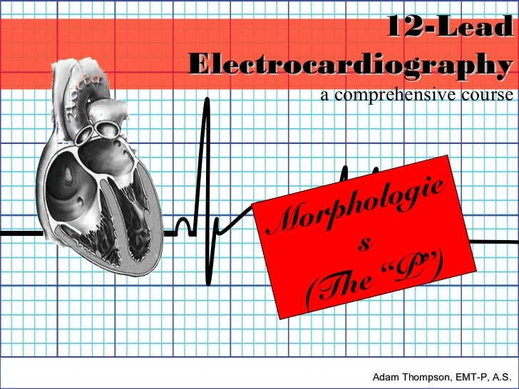 "12-LeadElectrocardiography       a comprehensive course         hologie    Morp          s          e"" P"")      (Th       ..."