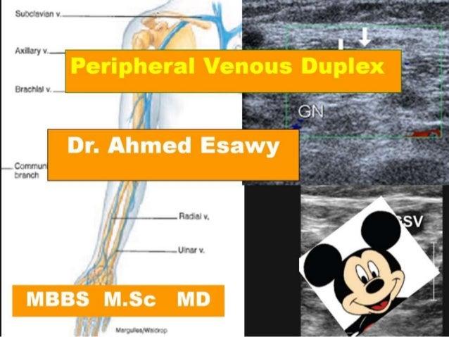 7 Peripheral Venous Duplex Perforating Veins Anatomy Dr Ahmed Esawy